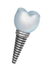 dental implants - Spring Valley